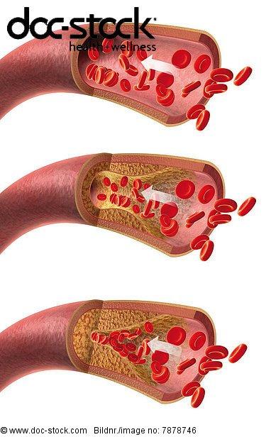 Arterie mit roten Blutkörperchen und Arteriosklerose