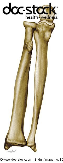 Anatomie,Anatomie-Modell Anatomiemodell Knochenmodell,Anatomie ...