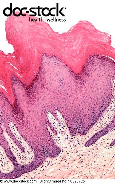 abartig,abnorm,Abschnitt,Abteilung,Akanthom,Anatomie